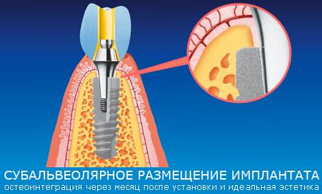 субальвеолярное размещение имплантата