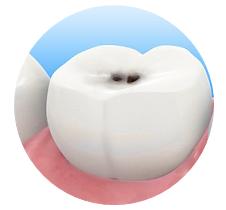 Лечение зубов в Открытой стоматологии