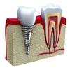 Имплантация зубов в Открытой стоматологии